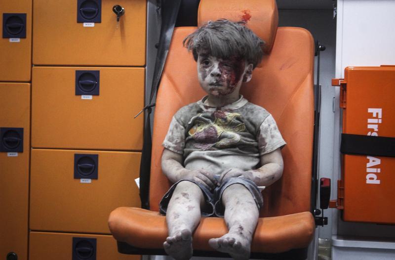 敘利亞五歲男孩Daqneesh從一場空襲中被搶救出來,眼神呆滯地望著前方。
