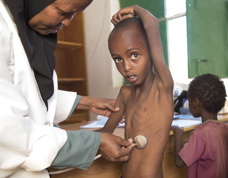 索馬利亞面臨飢荒,導致五歲男童Abdulahi 嚴重營養不良。(東方IC)