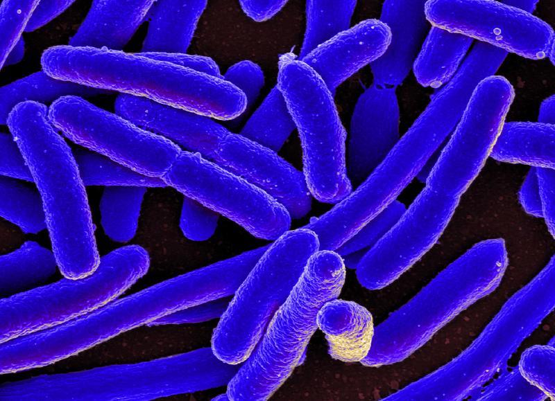 美國亞特蘭大,掃描電子顯微鏡的大腸桿菌影像。(東方IC)