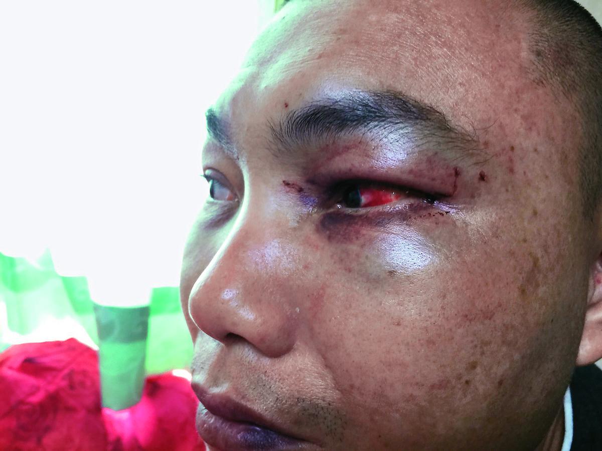 曾姓里民參加廟會活動莫名被毆,眼睛紅腫、眼角出血,覺得相當的冤枉。