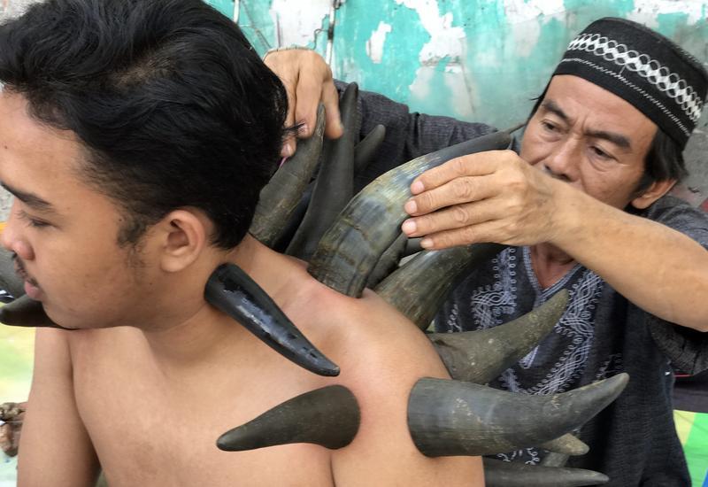 印尼街頭出現治療師以牛角為人拔罐的景象。(東方IC)