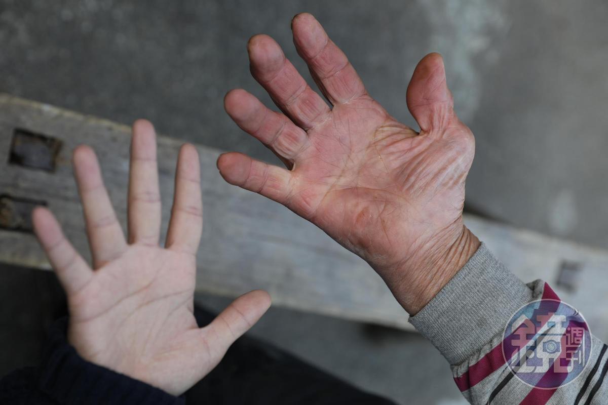 朱萬鶴手掌已經變形,手掌的寬度也是ㄧ般人兩倍大。