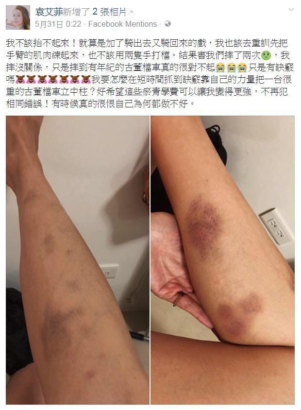 袁艾菲在臉書po出拍戲騎檔車受傷照,拍攝當天經紀人也為了此事和副導演槓上。(翻攝自袁艾菲臉書)