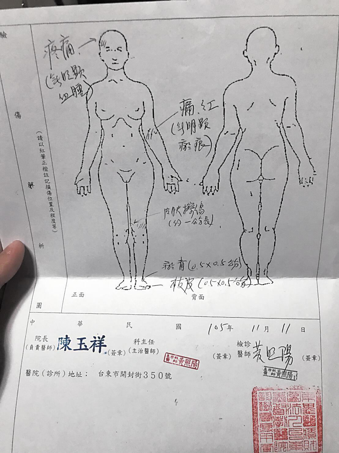 黃勝雄多次毆妻,除了近期4月7日外,爆料者出示2016年黃勝雄老婆的驗傷單,可見到頭部、手腕、腳部都有受傷。(讀者提供)