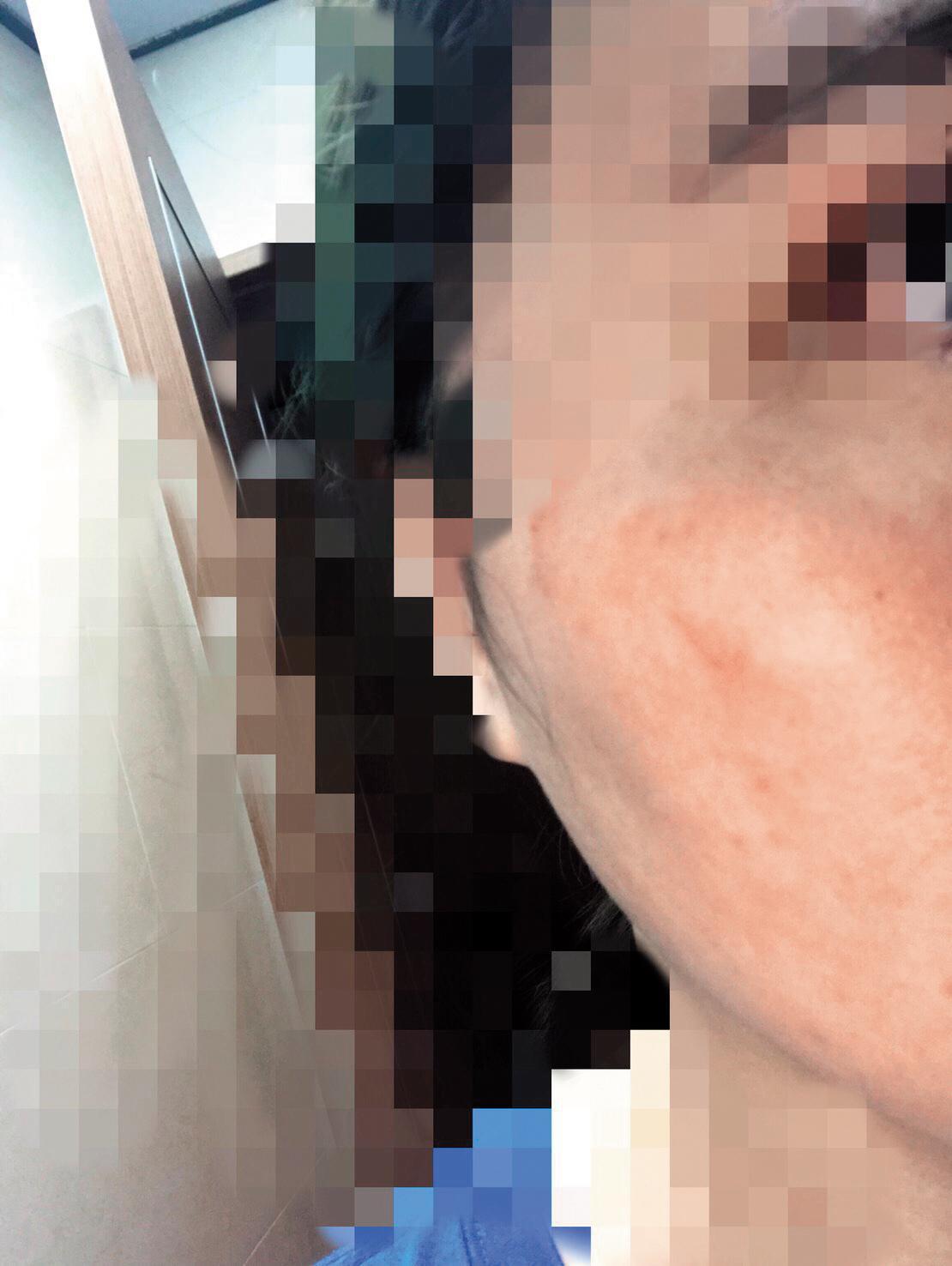 黃勝雄怒打黃妻好幾個耳光,事發後2小時,黃妻的臉部依舊紅腫可見。