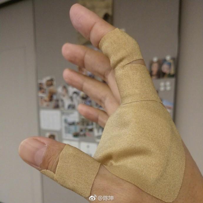 陳坤還貼出手上受傷的照片。(陳坤微博)