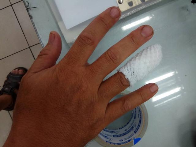 泰山分駐所所長張金全手指被咬傷。(警方提供)