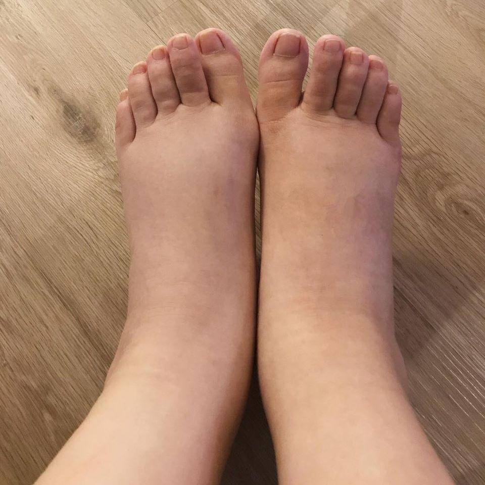 懷孕期間熊黛林一雙腳腫成像豬腳,身為名模的她不禁說媽媽真偉大。(翻攝熊黛林臉書)