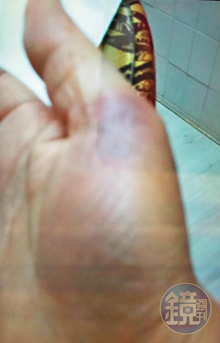 方典被丈夫打到右手掌瘀青,她特地拍下照片到醫院驗傷。(讀者提供)