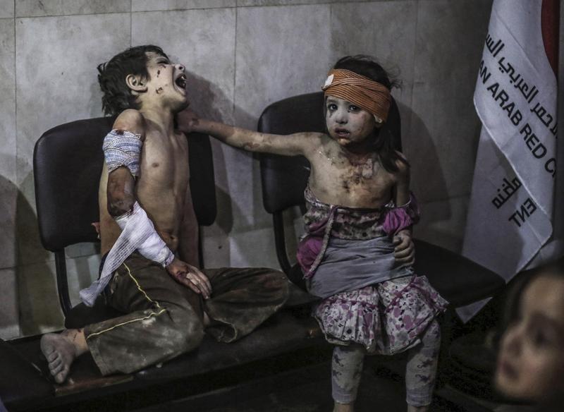 2015年8月22日,敘利亞杜馬郊區,在阿薩德政權的空襲後,受傷的孩子被送往敵對陣營的戰地醫院。(東方IC)