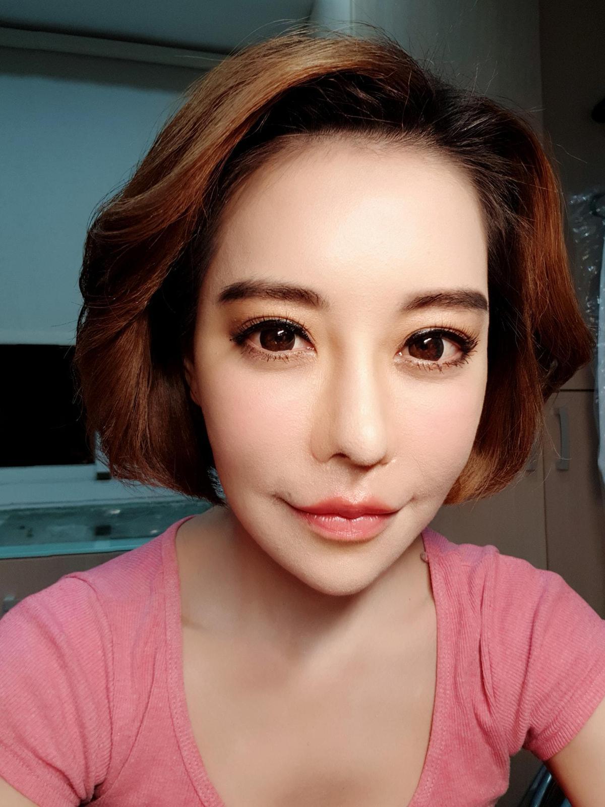 斯容前後整形超過60次,曾經花37萬赴韓國削骨,不料卻出現臉麻面僵後遺症。(翻攝自斯容臉書)