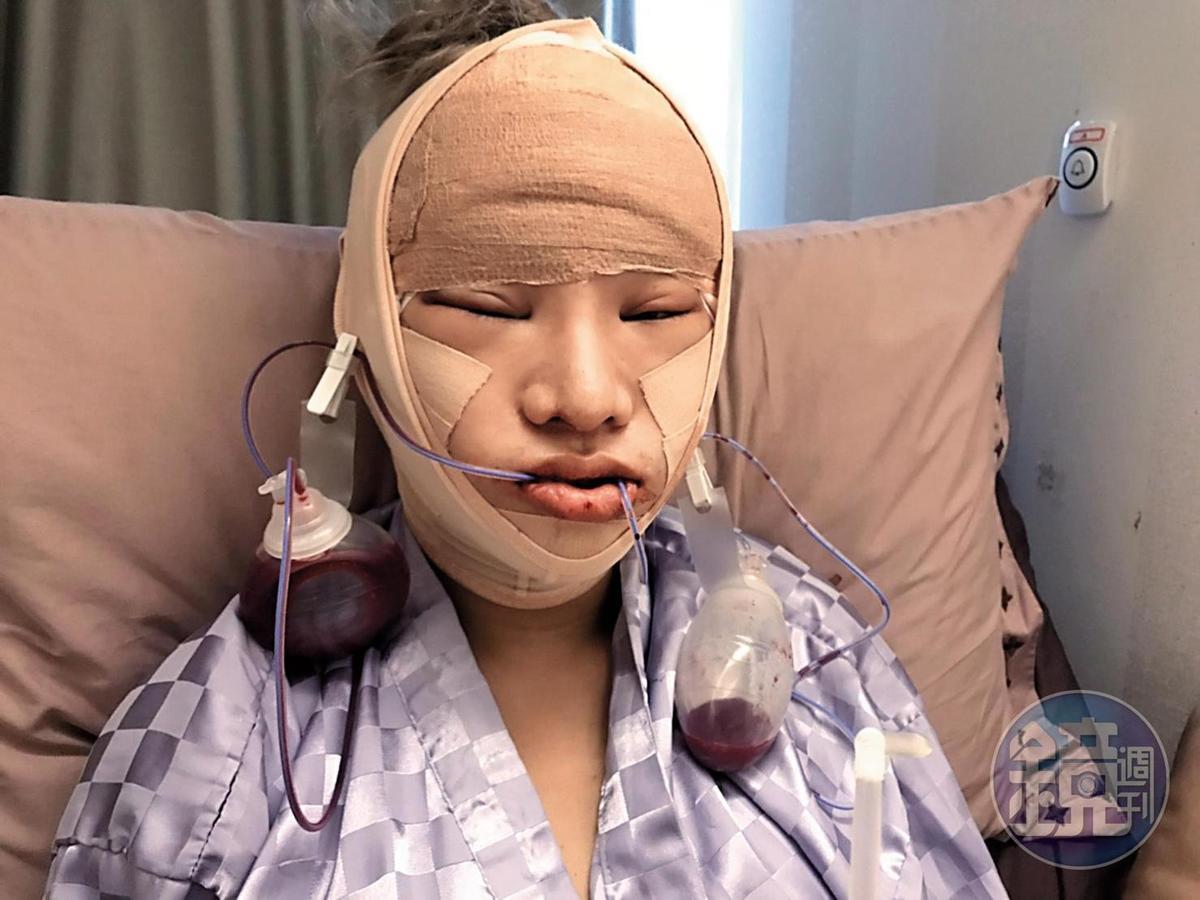 剛動完臉部手術後,小A辣幾乎包成木乃伊,休息3個月不能露臉。(小A辣提供)