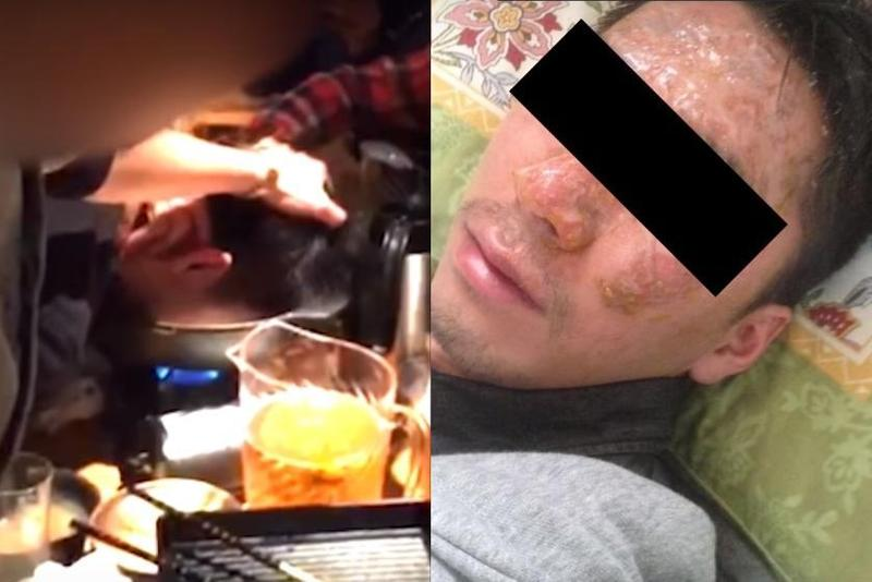 員工被社長以「取悅客戶」為由,將他的頭浸在鍋裡,造成他遭嚴重燙傷。(翻攝《週刊新潮》YouTube)