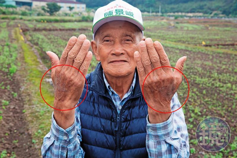 當地老農拔草時被咬,蟻毒在他的手上留下大片黑色斑記,數度就醫都好不了。