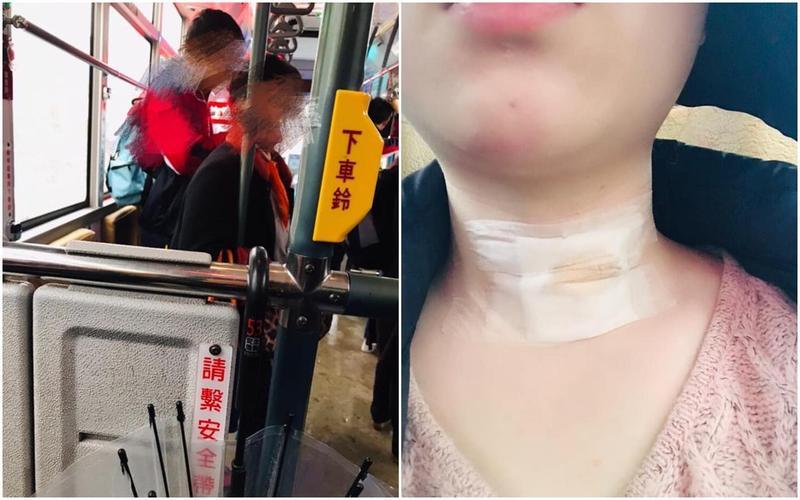 有名女網友因甲狀腺有傷口坐博愛座,沒想到卻遭歐巴桑不斷羞辱,甚至搖頭狠酸「沒救了」。(翻攝自臉書爆怨公社)