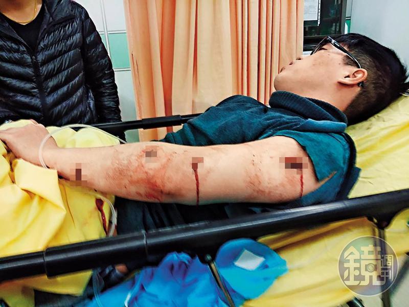 蔡姓少東在住家樓梯間遭到攻擊,身中5刀。