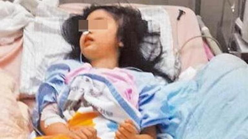 當時才5歲的女童被公園電線嚴重電擊,至今仍有後遺症。(翻攝畫面)