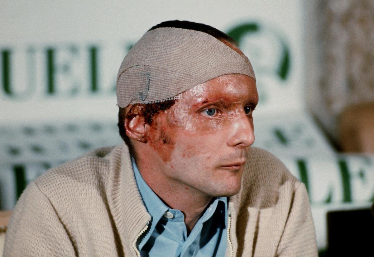 1976年德國大獎賽,勞達遭遇嚴重車禍和大面積燒傷。火災後勞達出席上記者會,這場大火給他留下了大片傷疤。(東方IC)