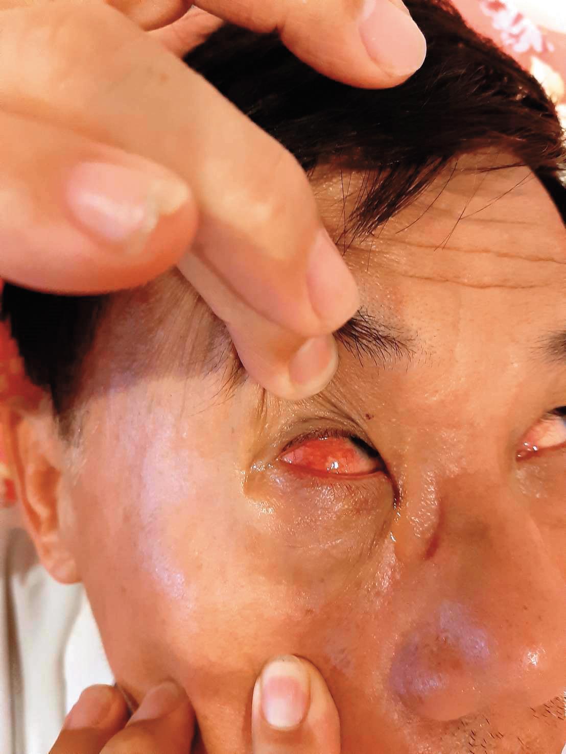 遭陳父毆打的住戶渾身是傷,其中有人被打到右眼視力受損,至今仍需復健。(讀者提供)