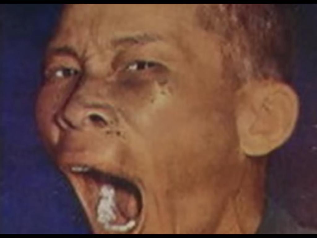在1958年3月他受審時的新聞照片裡,細偉張口呵欠,容易令人聯想到猙獰的食人魔。(網路截圖,Thai PBS)