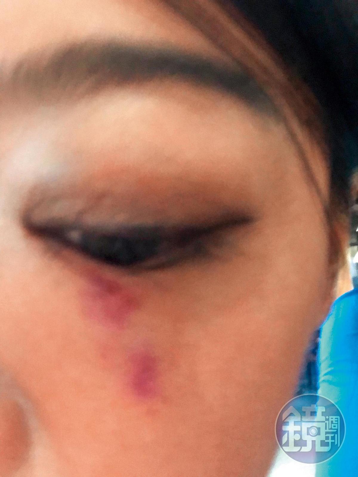7月18日開庭時,李小姐被屁蛋妹拿手機砸傷眼,當天立刻去驗傷又告她一條傷害罪。(讀者提供)