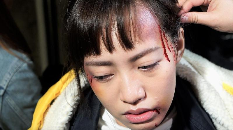 焦曼婷傷妝非常真實,也讓她帶上情緒落淚,卻被焦恩俊笑虧:「妳很睏嗎?」。(LINE TV提供)