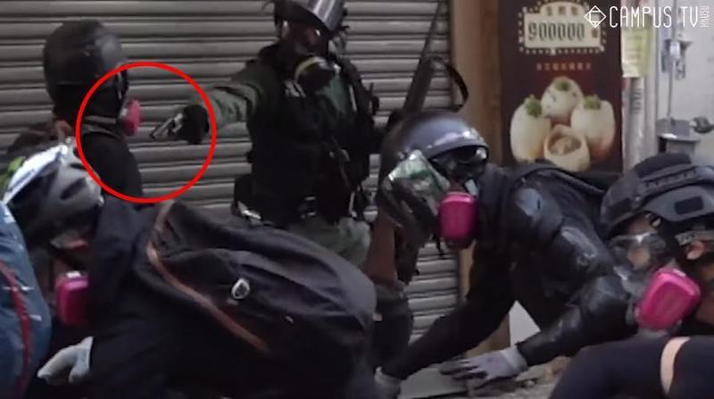 一名示威者遭警方近距離射擊左胸(紅圈處),中槍倒地後,被送往瑪嘉烈醫院急救中。(翻攝自香港大學學生會校園電視)