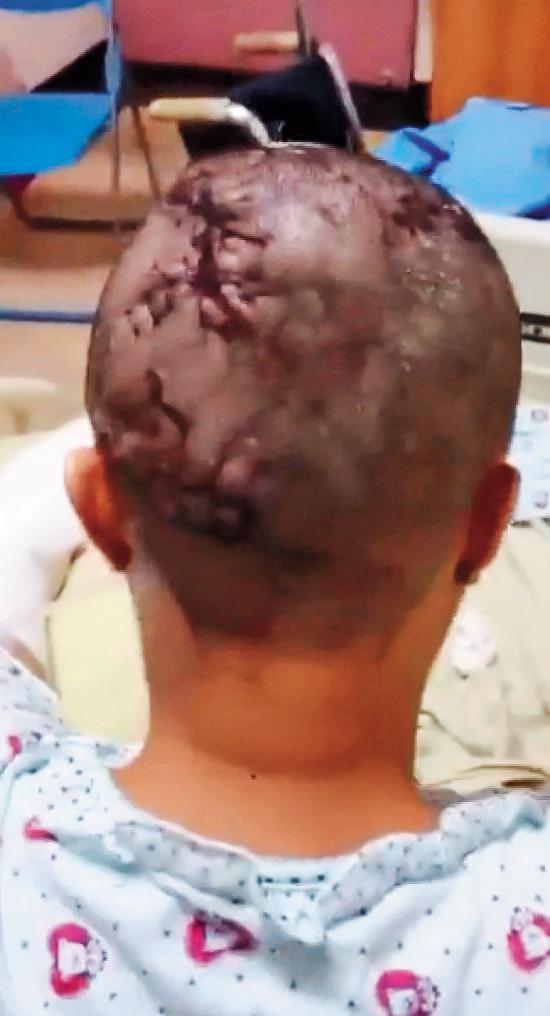 謝女被毆打關在冰櫃內,獲釋後送醫,頭部縫了一百多針。(東森新聞提供)