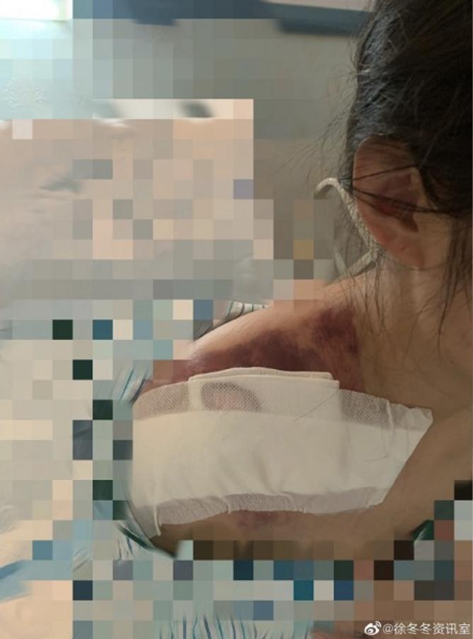 徐冬冬拍了自己的傷勢照片在微博報平安,可以看到肩膀上一整片的淤青。 (翻攝微博)