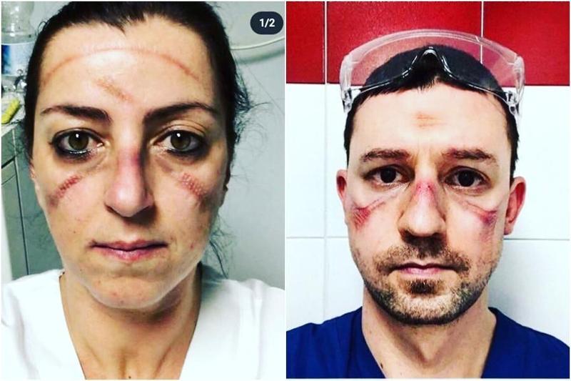 醫護人員拿下護目鏡後臉上被勒出暗紅色壓痕與瘀傷。(翻攝自covid_nurses IG)