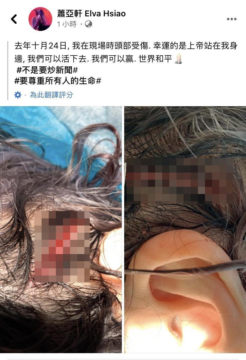 蕭亞軒突然曬出受傷照片。(翻攝自蕭亞軒臉書)