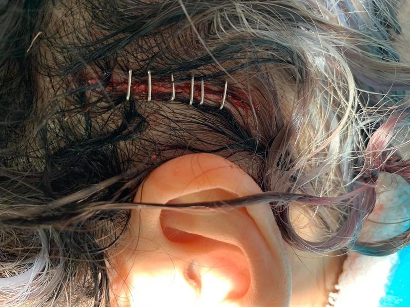 蕭亞軒上傳頭部受傷,約10公分長的傷口照,嚇壞眾人。(翻攝自蕭亞軒臉書)