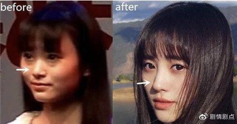 鞠婧禕過去的樣貌十分扁平,與現在十分不同。(翻攝微博)