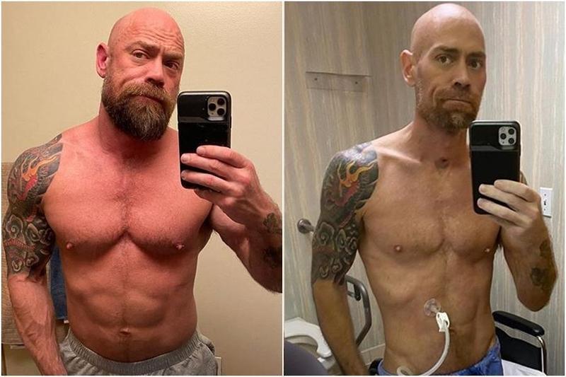 美國一名男護理師舒瓦茲(Mike Schultz)染疫後暴瘦23公斤。(翻攝自IG:thebearded_nurse)