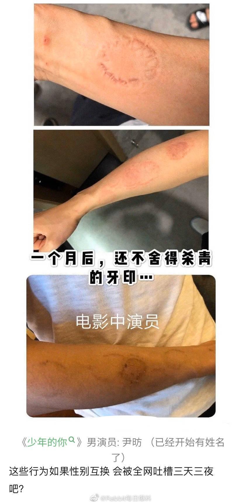 周冬雨拍《少年的你》時因劇情需要咬了同片演員的手臂,事隔一個月痕跡依舊存在。(翻攝自Rabbit每日爆料微博)