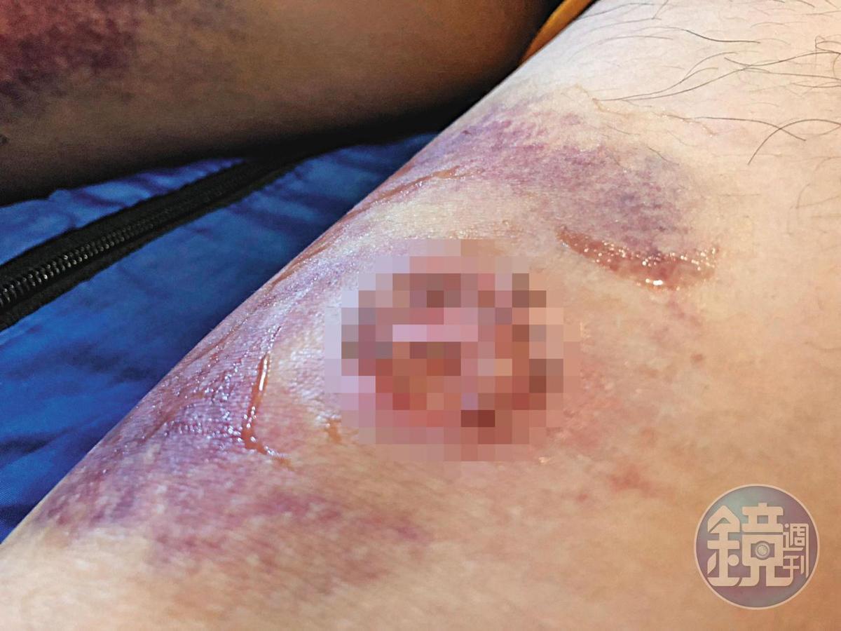 Ivan去年抗爭時遭港警發射的布袋彈打中雙腿,一度痛到倒地、無法行走。圖為被布袋彈射傷後的患處照片。(Ivan提供)