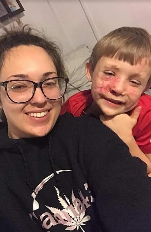 坎登和媽媽的合照。坎登出事後保持招牌陽光笑容,只是臉上多了很多縫線和傷疤。(翻攝gofundme募資頁面)