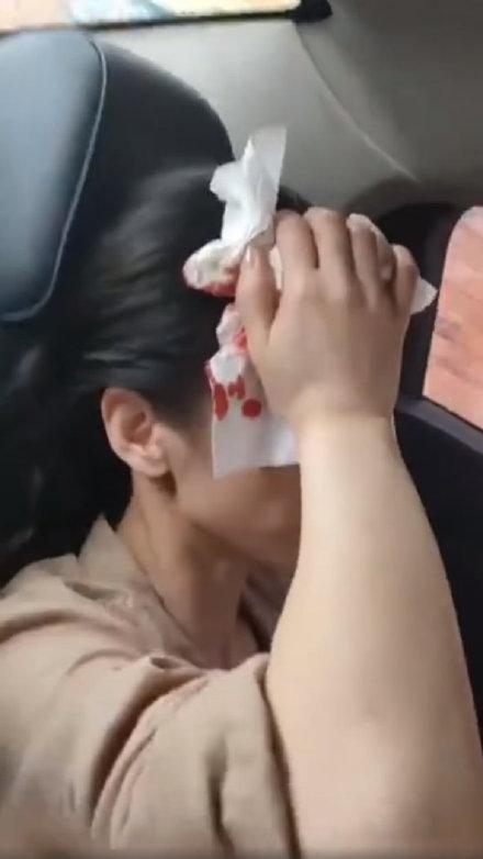 黃聖依也在拍戲時遭道具砸傷頭,按在傷口上的衛生紙點點血跡十分驚悚。(翻攝自黃聖依粉絲團微博)