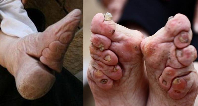 纏足要用石膏固定後才算完成「弓足」,期間更是容易引發腳指容易長雞眼、發熱與紅腫。(翻攝自網路)