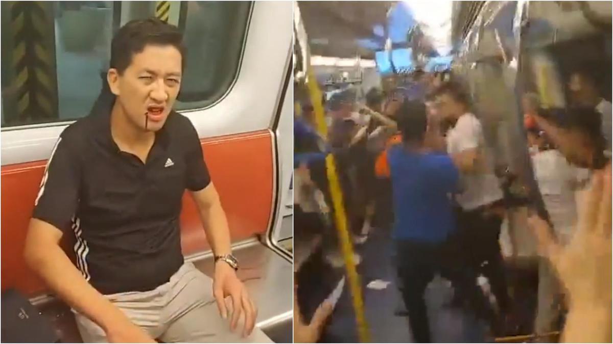 立法會議員林卓廷(左)在7.21元朗事件也遭攻擊受傷,卻被指控涉嫌暴動而遭拘捕。(翻攝自林卓廷臉書)