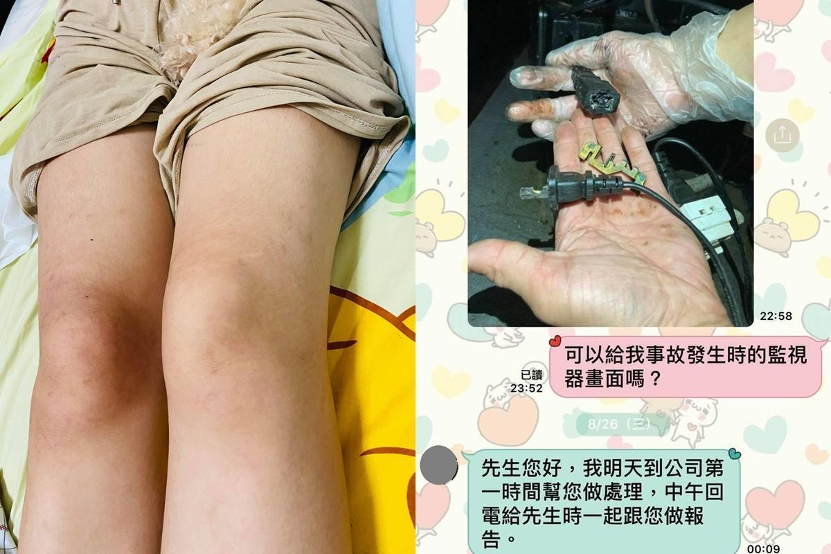 王姓女網友台南吃火鍋遭電擊,左腳癱瘓無知覺。(翻攝自臉書社團「爆料公社」)