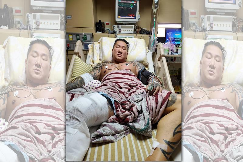 館長昨日PO文,半夜看到受傷的大腿,忍不住眼角泛淚。(翻攝自館長臉書)