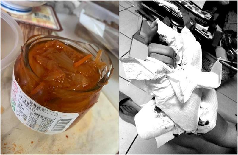 女子扭開罐頭,玻璃罐瓶身竟爆裂,導致她手指插滿玻璃送醫縫6針。(翻攝自「爆料公社」臉書社團)