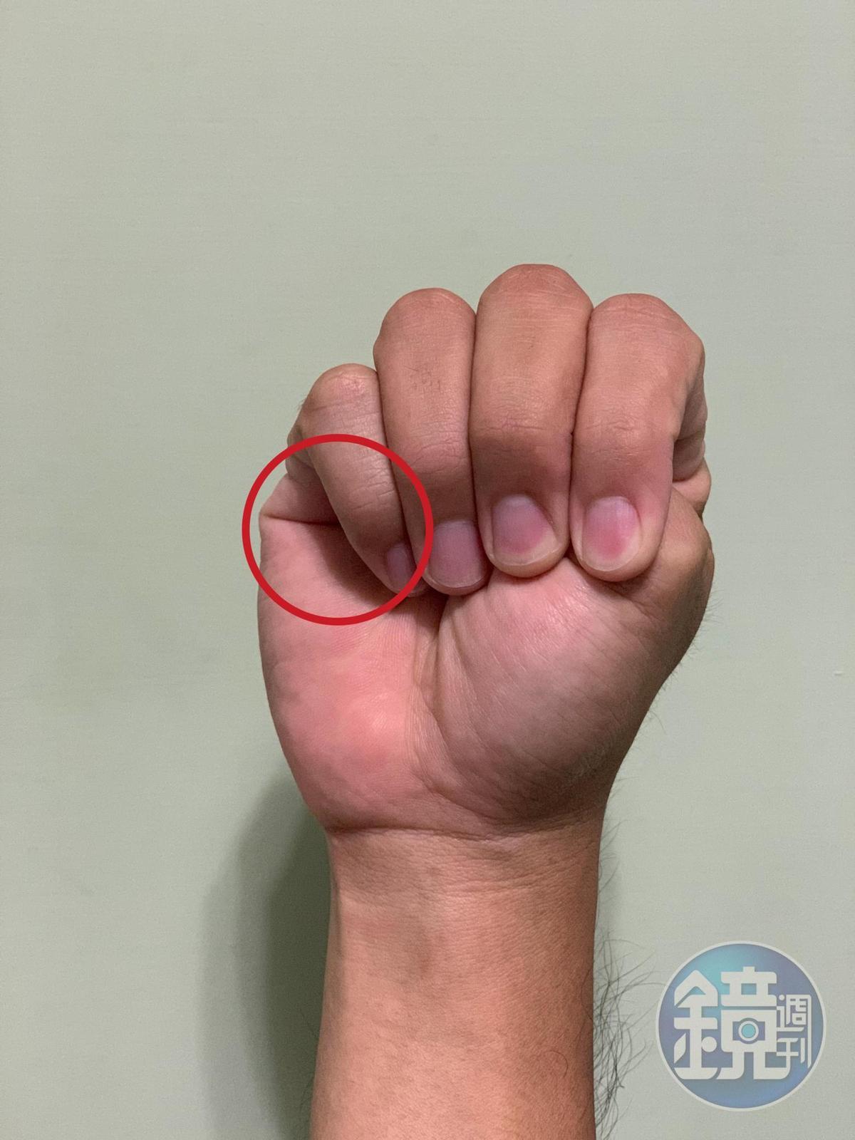 紅圈處是觀察重點,看大拇指是否有超過小指。(本刊資料照)