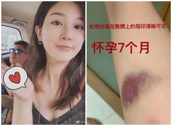 主播張莫涵帶球嫁短跑名將張培萌,卻屢遭家暴。(翻攝自微博搜狐新聞)