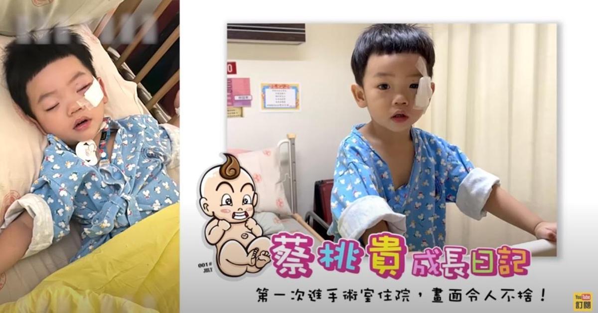 蔡桃貴上月眼角摔傷,進行人生中第一場全身麻醉手術。(翻攝蔡阿嘎YouTube頻道)