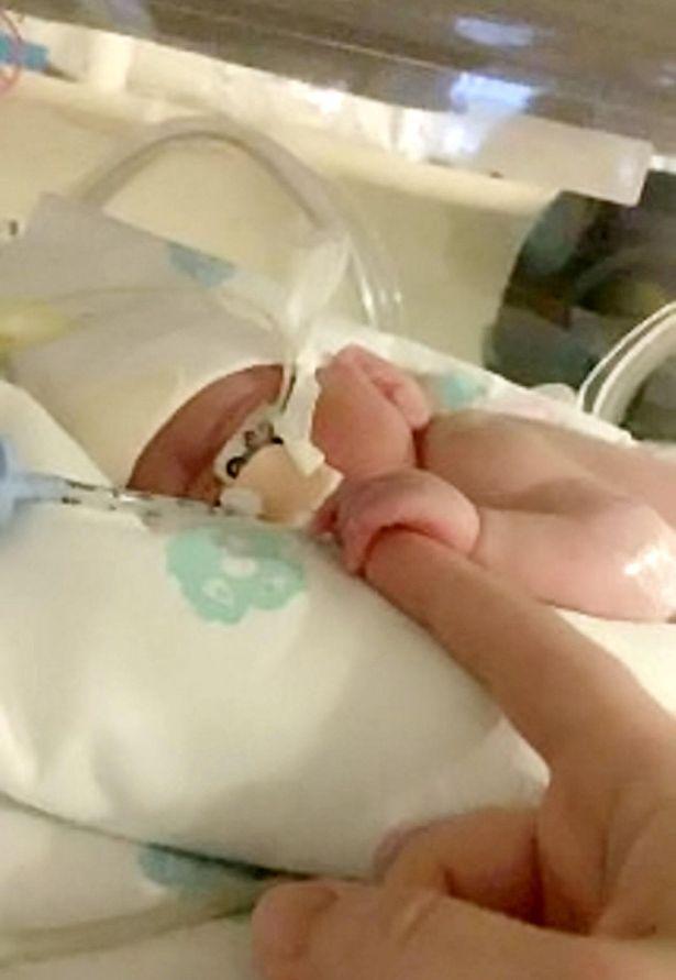 早產的阿奇雖然瘦小,但展現頑強的生命鬥志。(翻攝推特)
