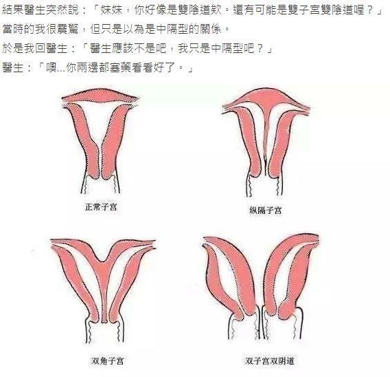 為陰道疾病就醫後,這名女網友被婦產科醫師判定可能是「雙子宮雙陰道」。(翻攝自Dcard)
