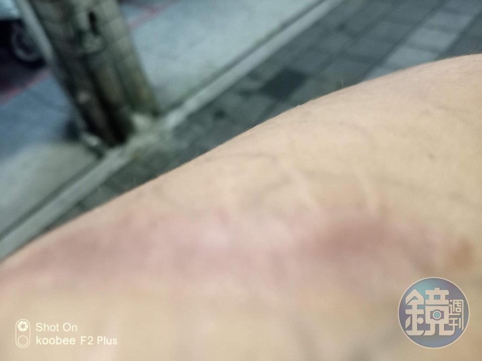 男子控訴父親曾教唆哥哥持刀砍他,左手臂留下長達5公分的傷疤。(讀者提供)