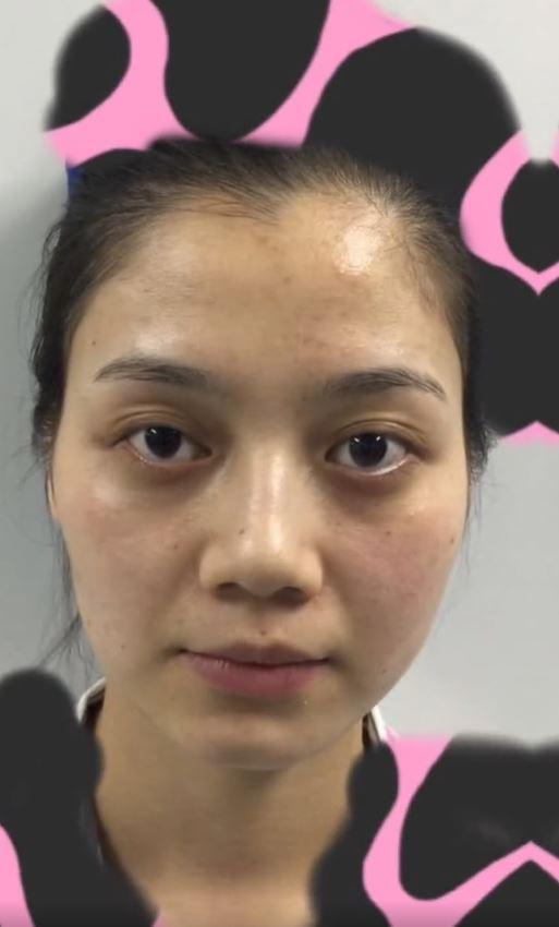 青青日前公開整形前的照片,網友對於前後差異感到震驚。(翻攝自微博)